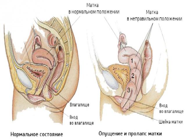 упражнения сужающие влагалище