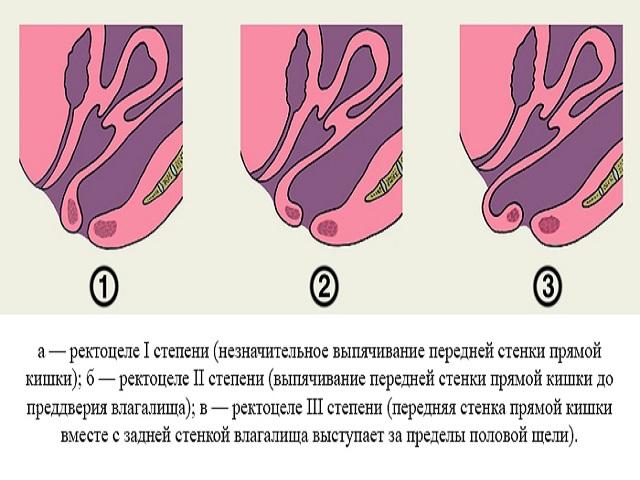 ректоцеле прямой кишки