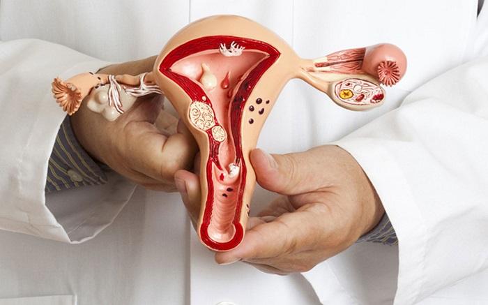 женские гениталии в разрезе